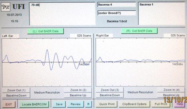 BAER-тест: левое ухо слышит нормально, правое ухо не слышит